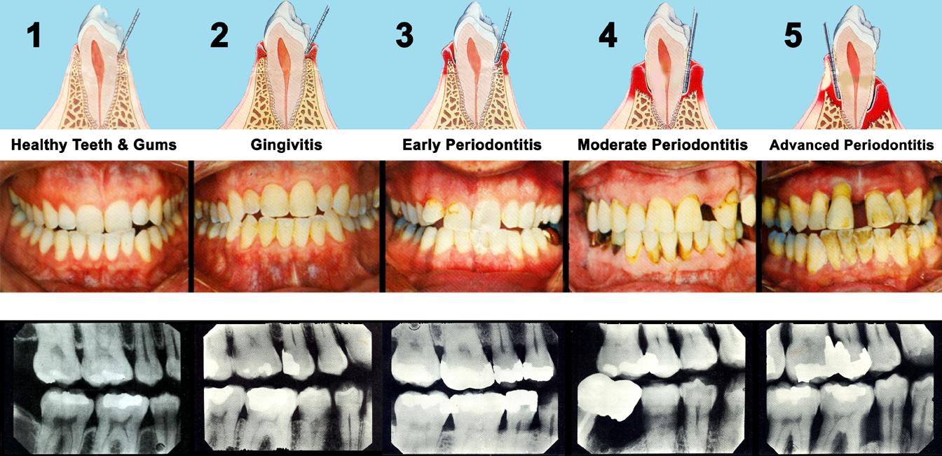 Sunnyvale Dentist - Periodontal Disease