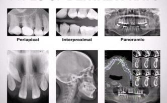 Types of Dental X-rays used by Sunnyvale Functional Dentist Jen Chiang DDS